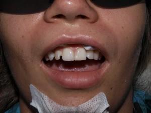 Реставрация зубов в Севастополе