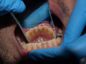 Профессиональная ультразвуковая чистка зубов в Севастополе