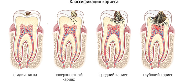 stages_of_caries